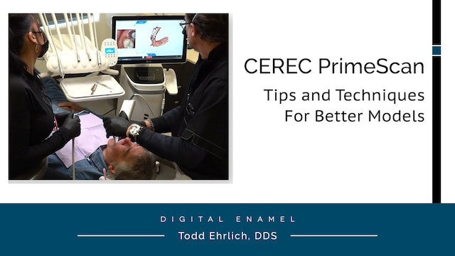 CEREC PrimeScan Techniques for Better Models
