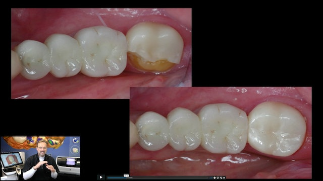 Using Fractured Restorations for Your Occlusal Design