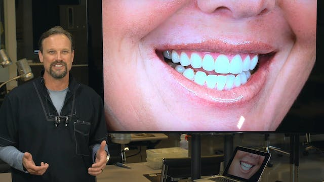 Veneers with CEREC