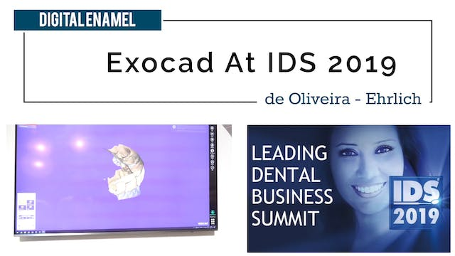 Exocad at IDS
