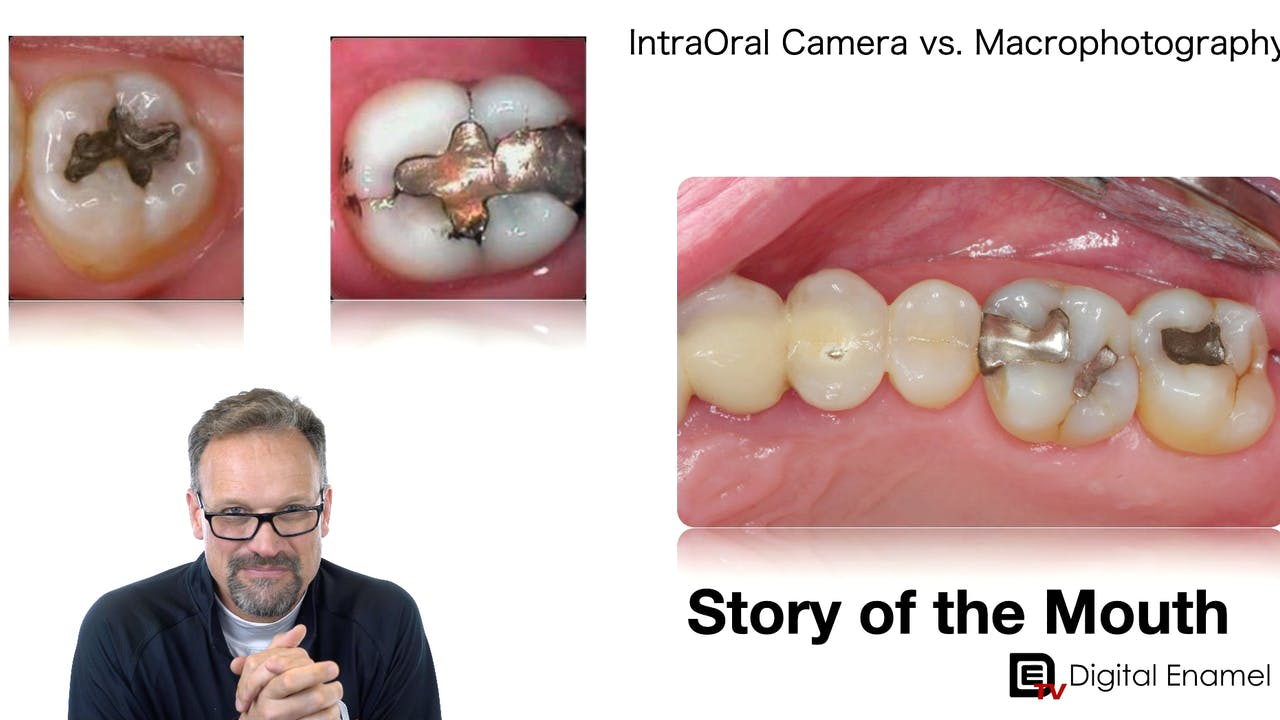 The Story of the Mouth:  Dental Photography