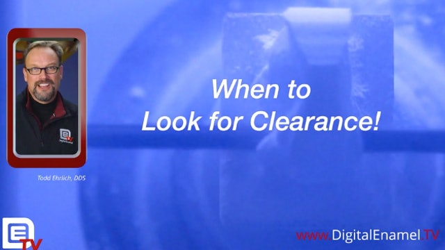 Digital Enamel Quick Hit When to Look for Clearance