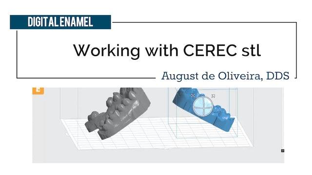 Working with CEREC stl
