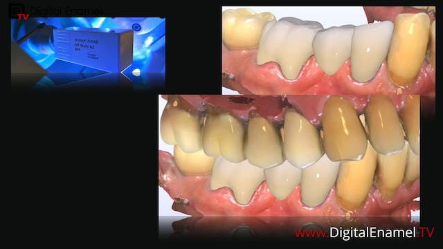 Zirconia Bridge Design