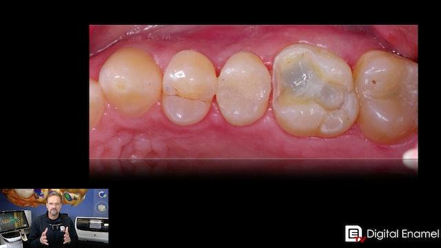 The CEREC Onlay Procedure