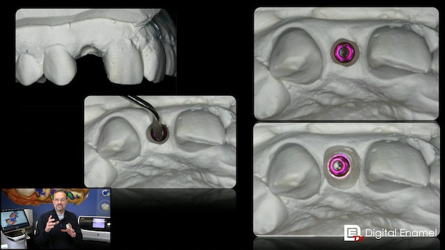 Stone Gingivectomy for Implants