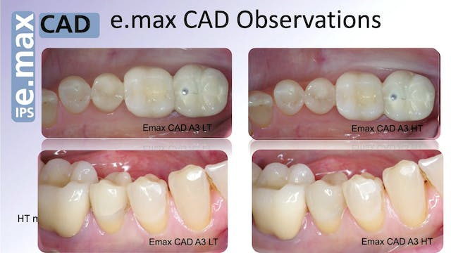 eMax HT vs LT in Posterior Restorations