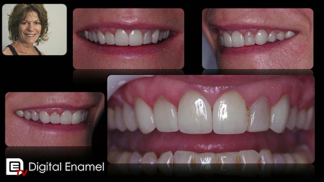 Power of One Visit Dentistry