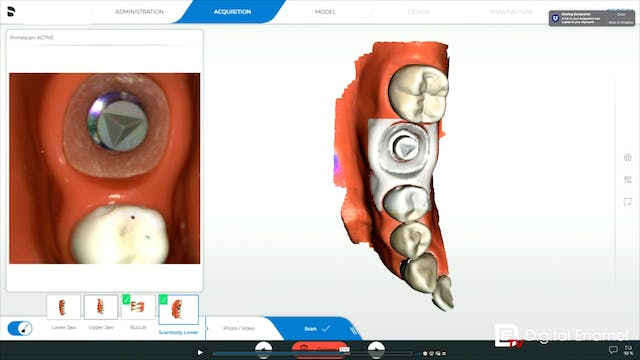CEREC Implants Imaging for Restoring ...