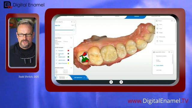 Distal Molar Drift DE Quick Hit