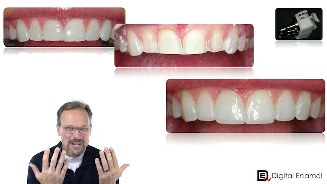 Minimally Prepared Veneers with eMax ...