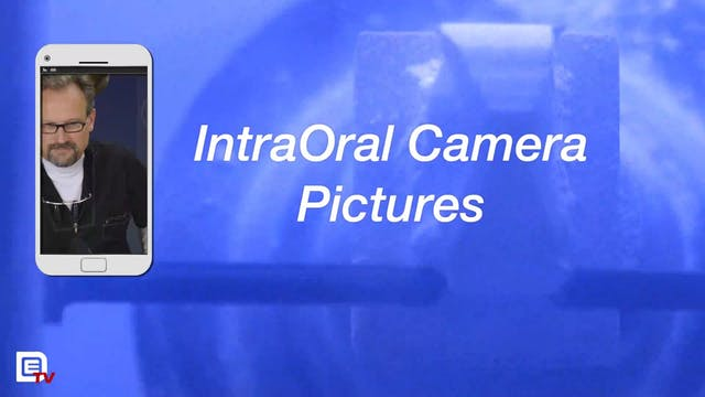 Where Are the IntraOral Camera Pictures?