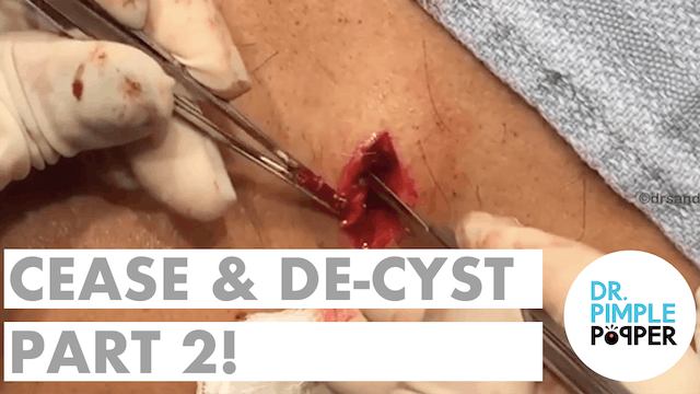 Cease & De-Cyst, Part Two!