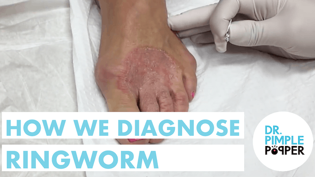How We Diagnose Ringworm