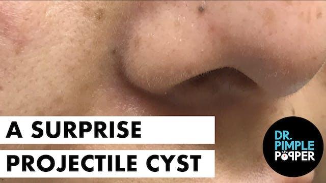 A Surprise Projectile Pilar Cyst