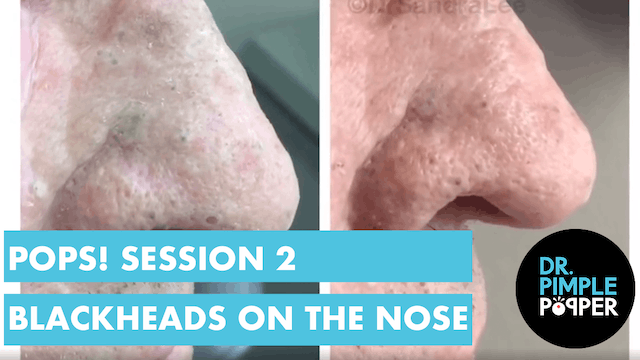 Blackheads, TNTC: Session 2 My patien...