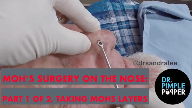 Mohs Sugery On The Nose: Part 1