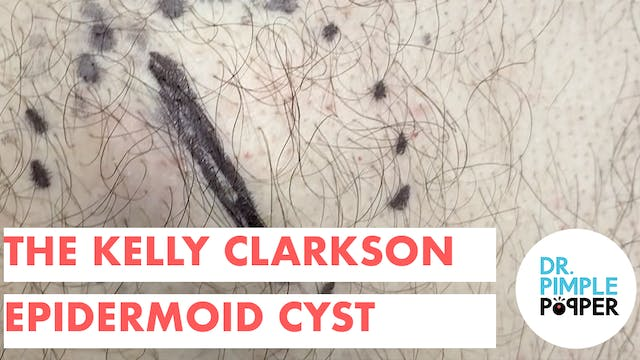 The Kelly Clarkson Epidermoid Cyst on...
