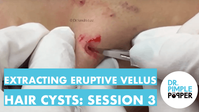 Extracting Eruptive Vellus Hair Cysts...