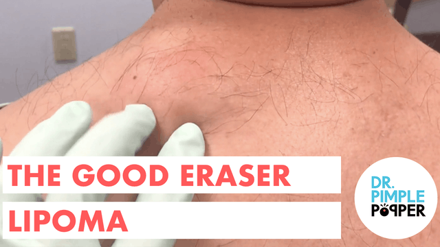 The Good Eraser Lipoma