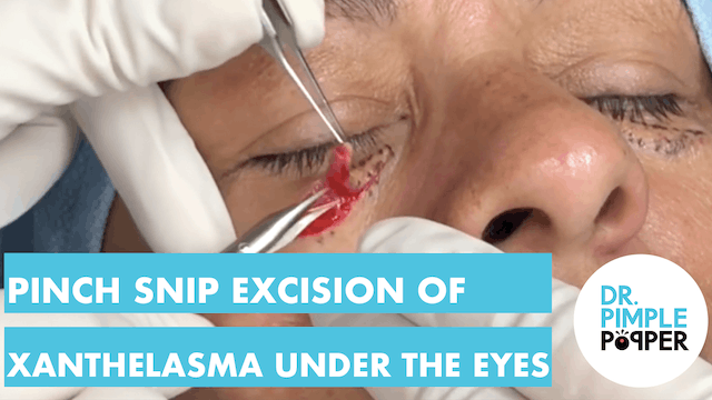 Pinch Snip Excision of Xanthelasma Un...