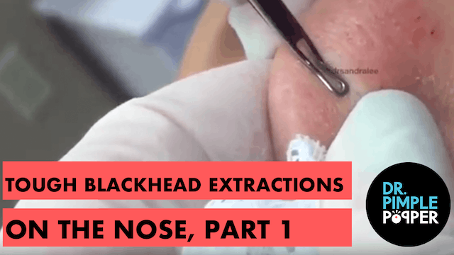 Tough blackhead extractions on the no...