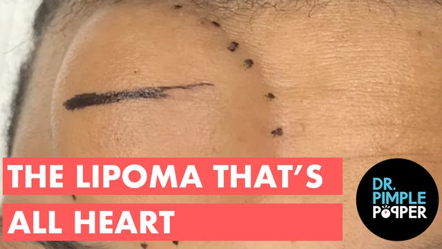 The All Heart Lipoma