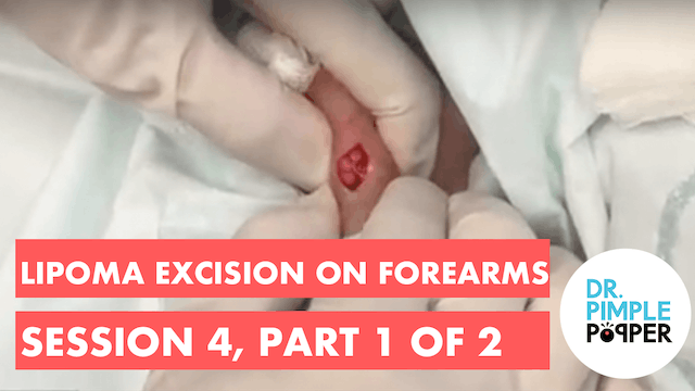 Lipoma excision on forearms, Session ...
