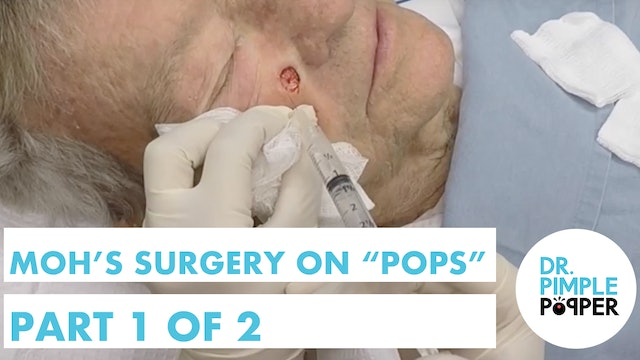 """Mohs surgery on """"Pops""""- Part 1 of 2"""