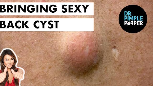 Bringing Sexy Back Cyst