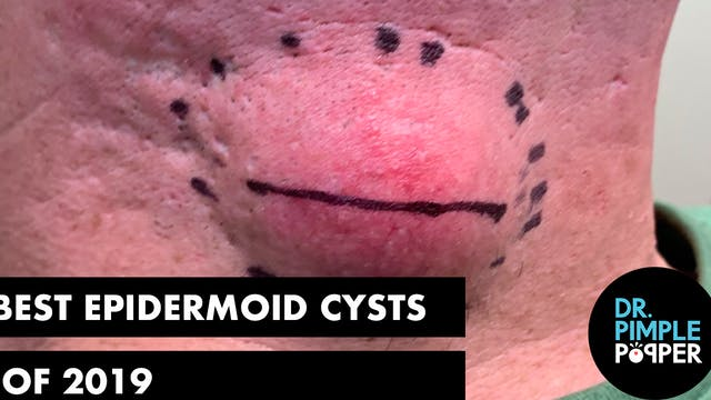 The Best Epidermoid Cysts of 2019