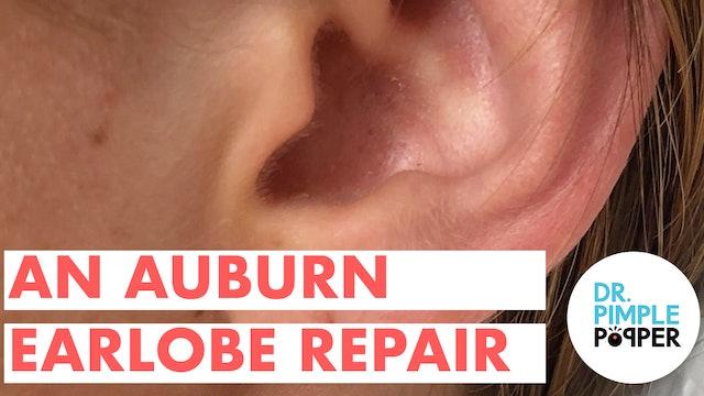 An Auburn Earlobe Repair