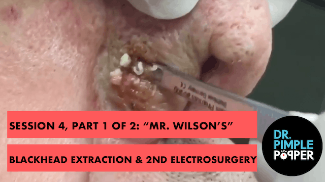 """Session 4, Part 1 of 2: """"Mr Wilson's""""..."""