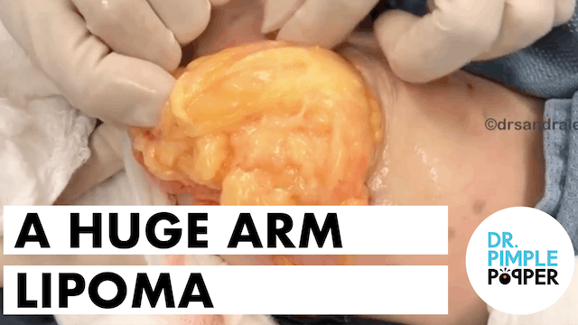 A HUGE Arm Lipoma removed by Dr Pimple Popper