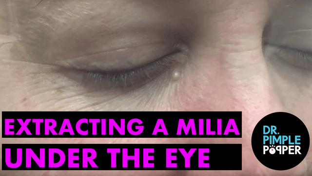 Extracting Milia Under the Eye