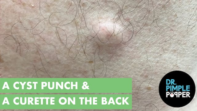 A Cyst Punch & Curette on the Back