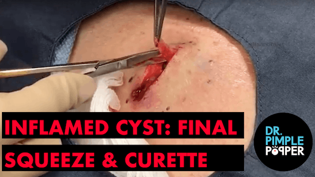 Inflamed Cyst: The Final Squeeze & Cu...