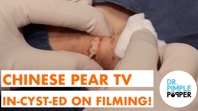 Chinese Pear TV inCYSTed on Filming