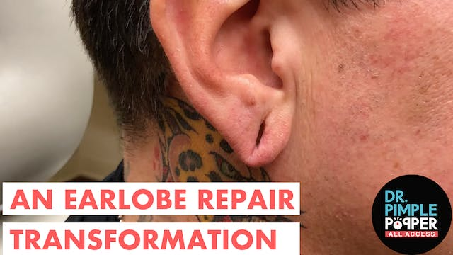 An Earlobe Repair Transformation