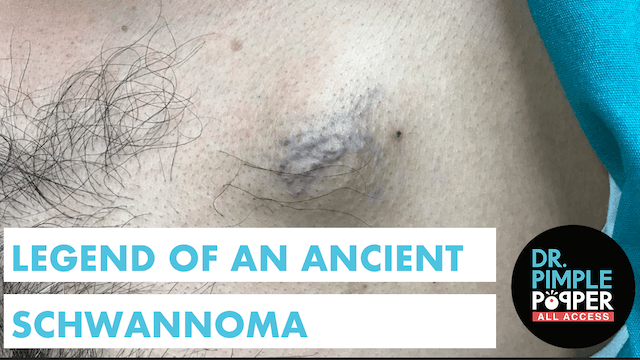 Legend of the Ancient Schwannoma