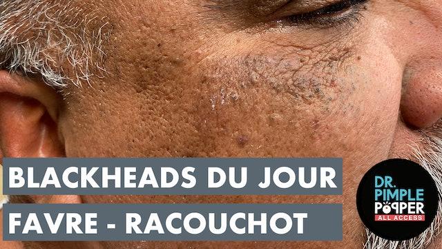 Blackheads Du Jour: Favre-Racouchot