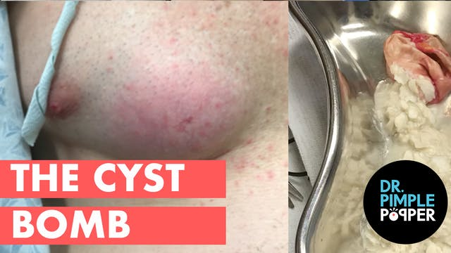 The Cyst Bomb