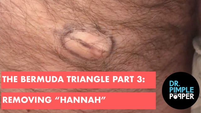 "The Bermuda Triangle Part 3: Removing ""Hannah"" After Removing Her Cysters!"