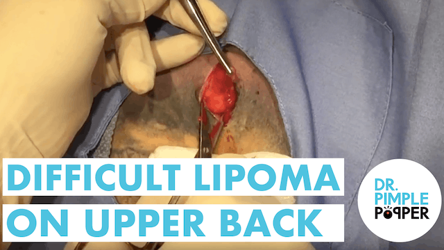 Difficult lipoma to remove on the Upp...