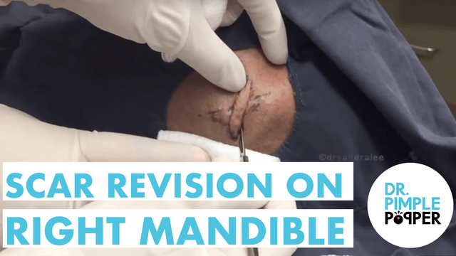 A Scar Revision on the Mandible