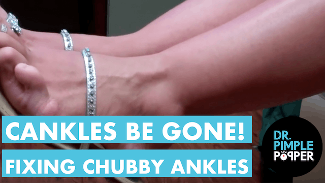 Cankles Be Gone! Dr. Sandra Lee to Fix a Woman's Chubby Ankles