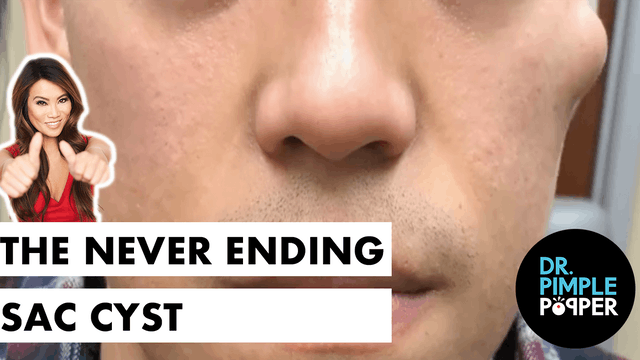 The Never Ending Sac Cyst