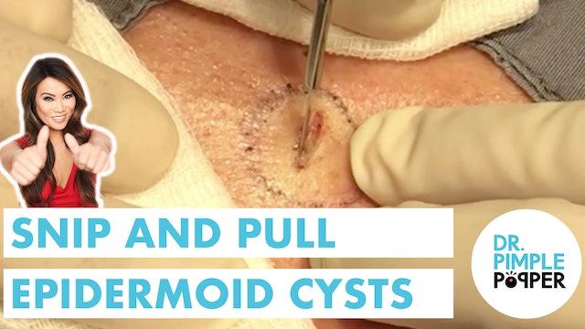 Snip & Pull Epidermoid Cysts (x3)