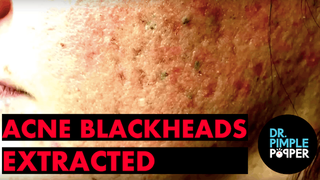 Acne & Blackheads extracted by Dr. Sa...