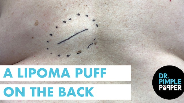 A Lipoma Puff on the Back